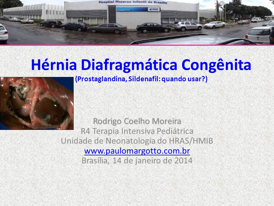 Hérnia Diafragmática Congênita (Prostaglandina, Sildenafil: quando usar )