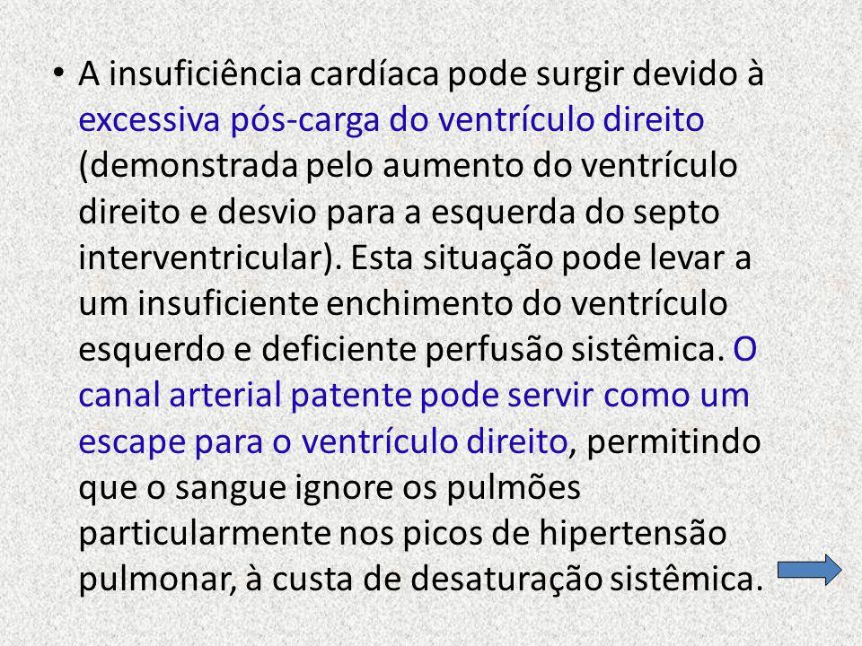A insuficiência cardíaca pode surgir devido à excessiva pós-carga do ventrículo direito (demonstrada pelo aumento do ventrículo direito e desvio para a esquerda do septo interventricular).