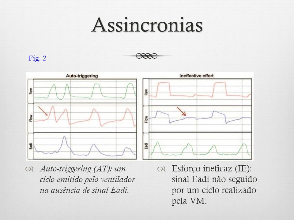 Assincronias Fig. 2. Auto-triggering (AT): um ciclo emitido pelo ventilador na ausência de sinal Eadi.