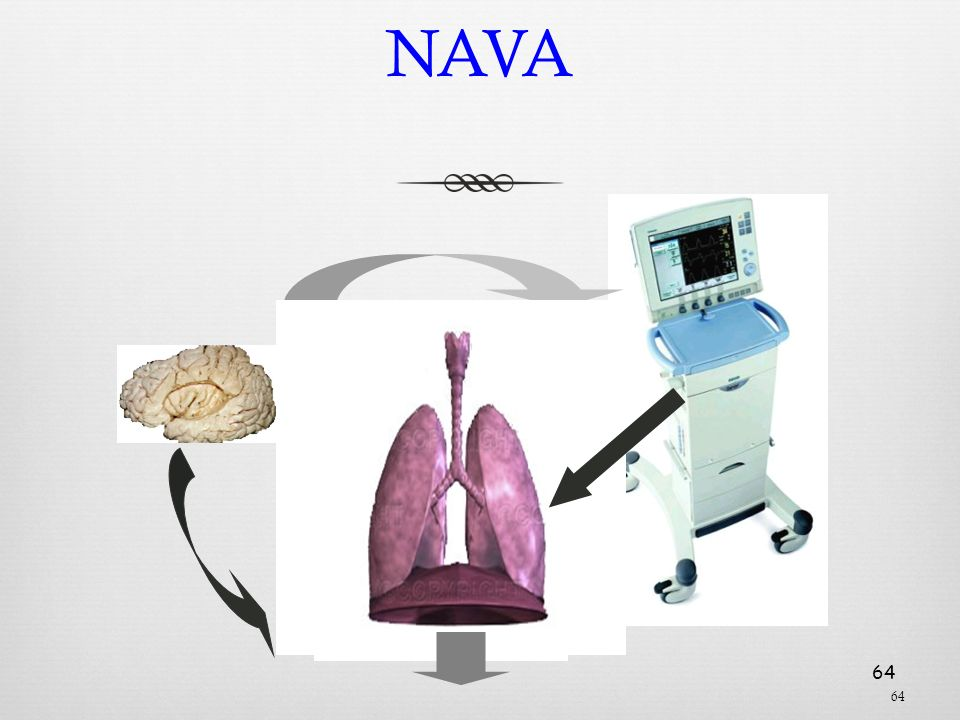 NAVA Training Presentation 2007