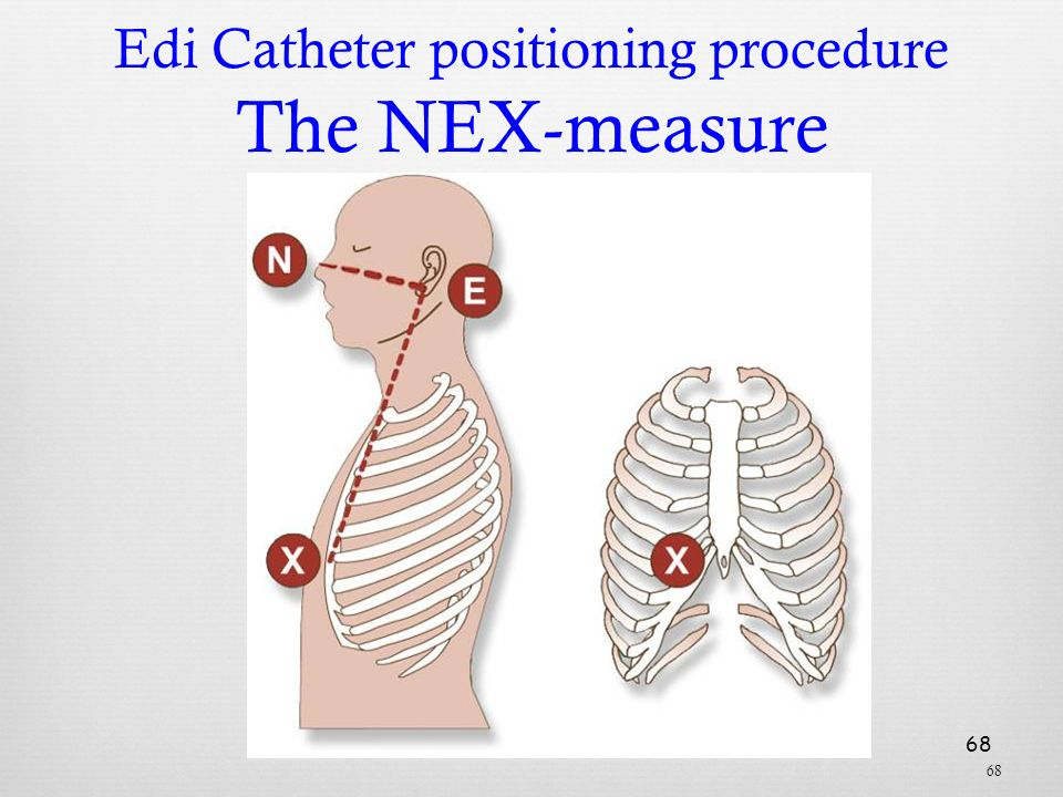 Edi Catheter positioning procedure The NEX-measure