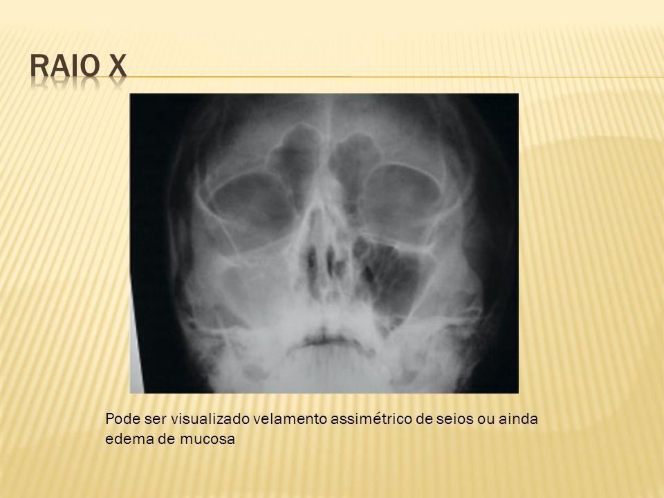 RAIO X Pode ser visualizado velamento assimétrico de seios ou ainda edema de mucosa