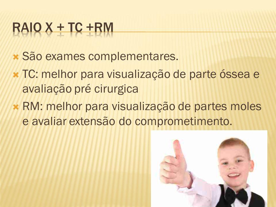 Raio x + tc +rm São exames complementares.
