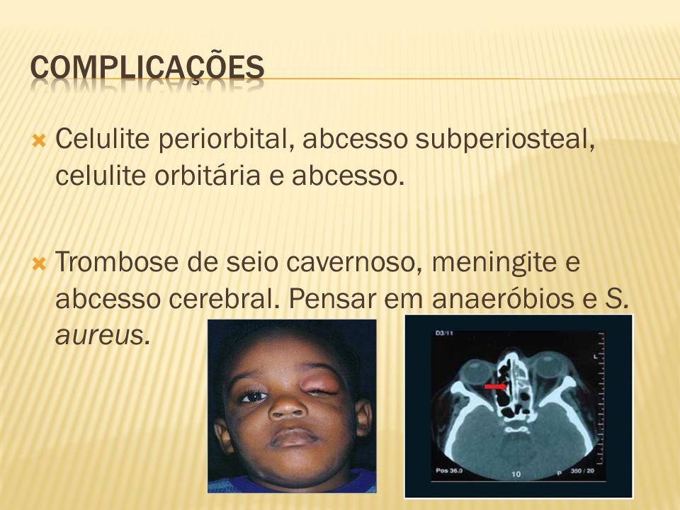 Complicações Celulite periorbital, abcesso subperiosteal, celulite orbitária e abcesso.