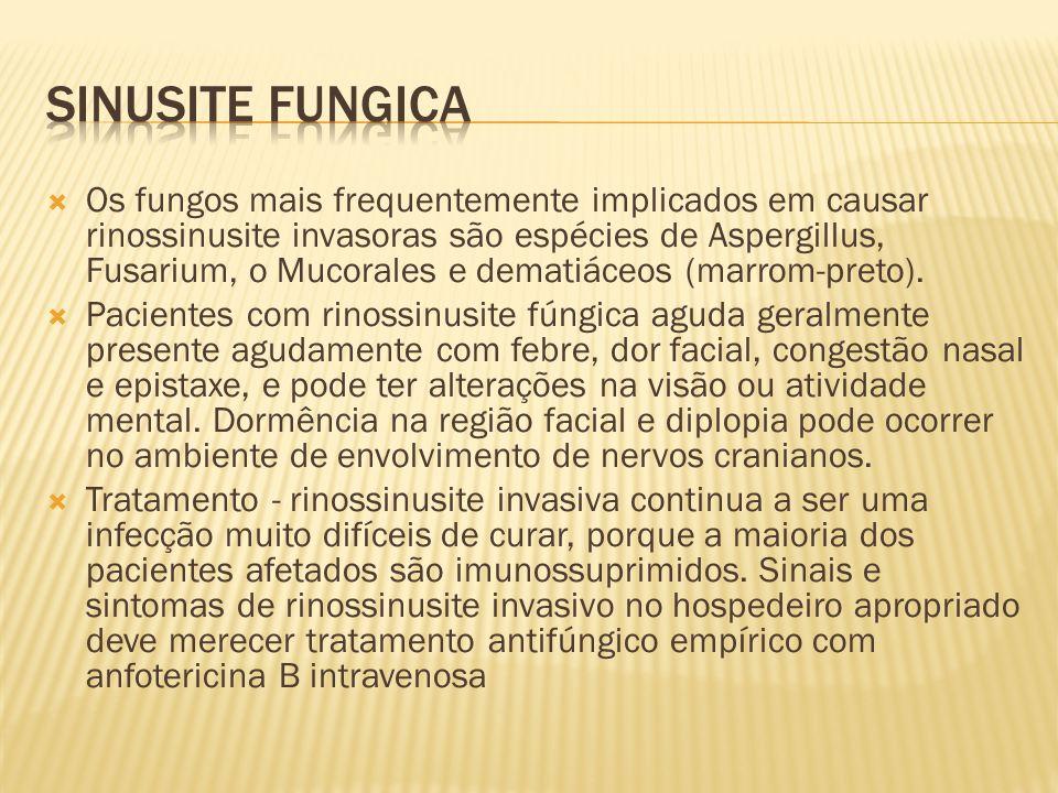 Sinusite fungica