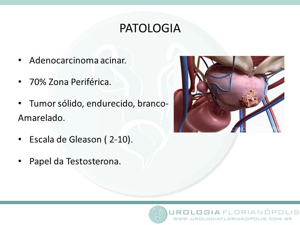 PATOLOGIA Adenocarcinoma acinar. 70% Zona Periférica.