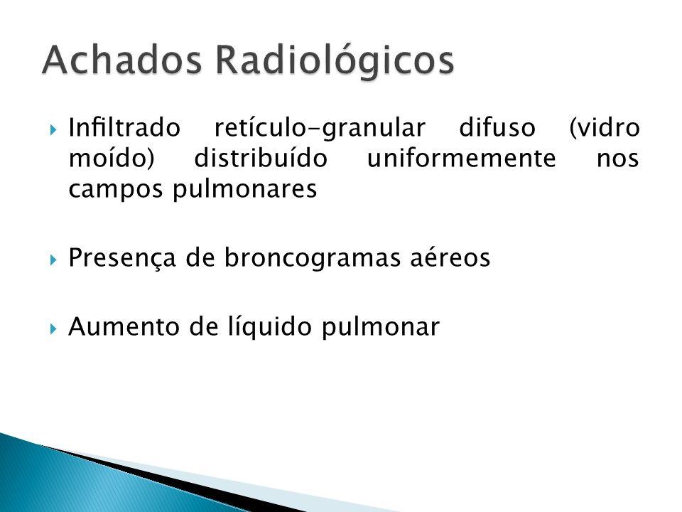 Achados Radiológicos Infiltrado retículo-granular difuso (vidro moído) distribuído uniformemente nos campos pulmonares.