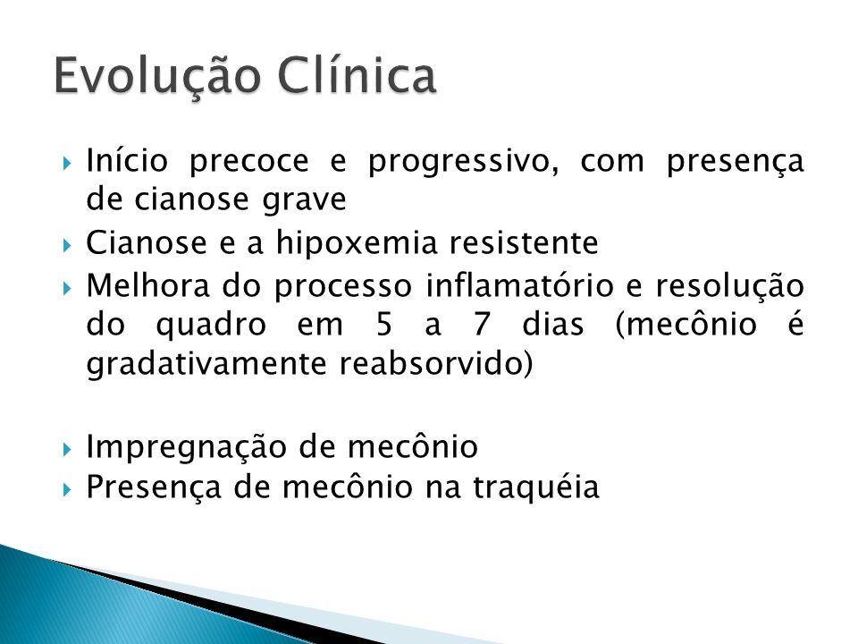 Evolução Clínica Início precoce e progressivo, com presença de cianose grave. Cianose e a hipoxemia resistente.