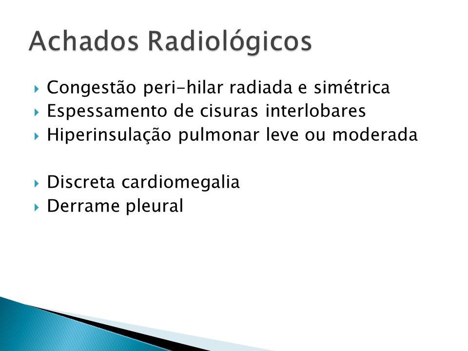 Achados Radiológicos Congestão peri-hilar radiada e simétrica