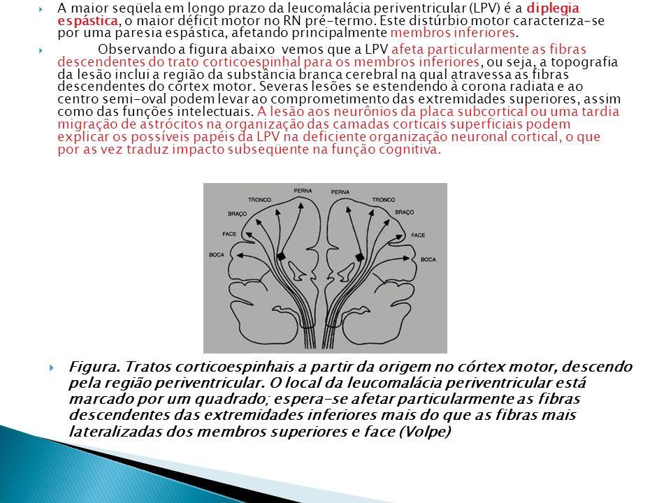 A maior seqüela em longo prazo da leucomalácia periventricular (LPV) é a diplegia espástica, o maior déficit motor no RN pré-termo. Este distúrbio motor caracteriza-se por uma paresia espástica, afetando principalmente membros inferiores.