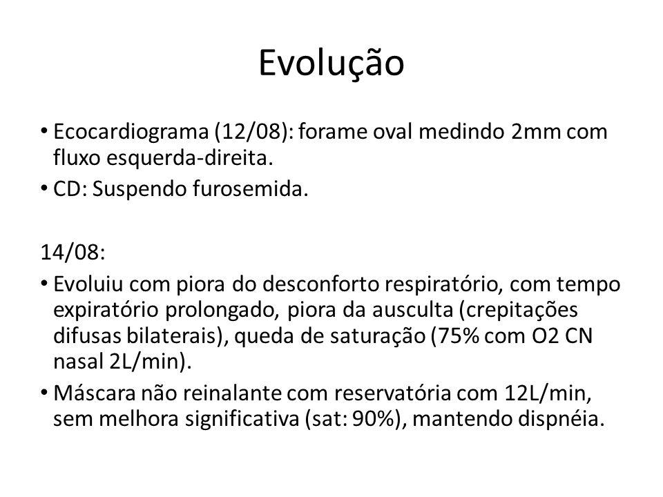 Evolução Ecocardiograma (12/08): forame oval medindo 2mm com fluxo esquerda-direita. CD: Suspendo furosemida.