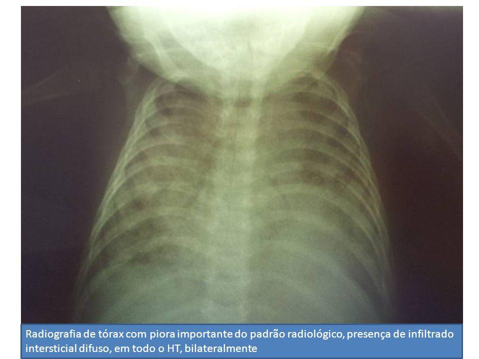 Radiografia de tórax com piora importante do padrão radiológico, presença de infiltrado intersticial difuso, em todo o HT, bilateralmente