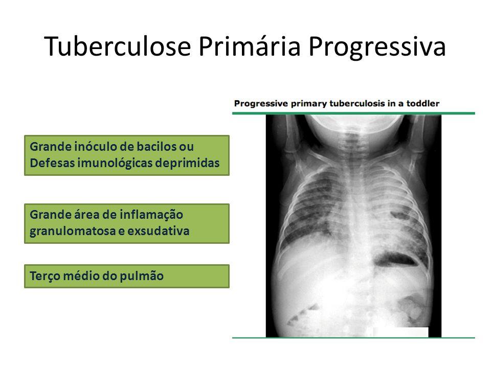 Tuberculose Primária Progressiva