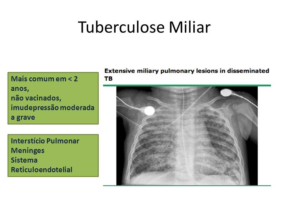 Tuberculose Miliar Mais comum em < 2 anos, não vacinados,