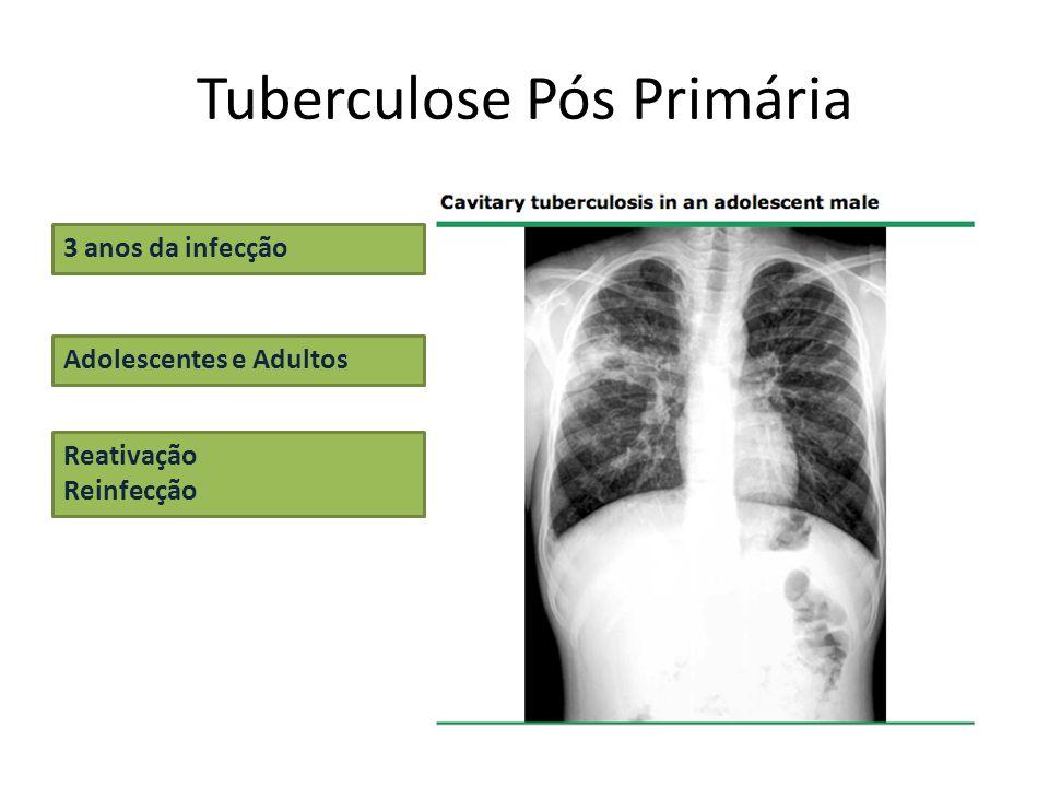 Tuberculose Pós Primária