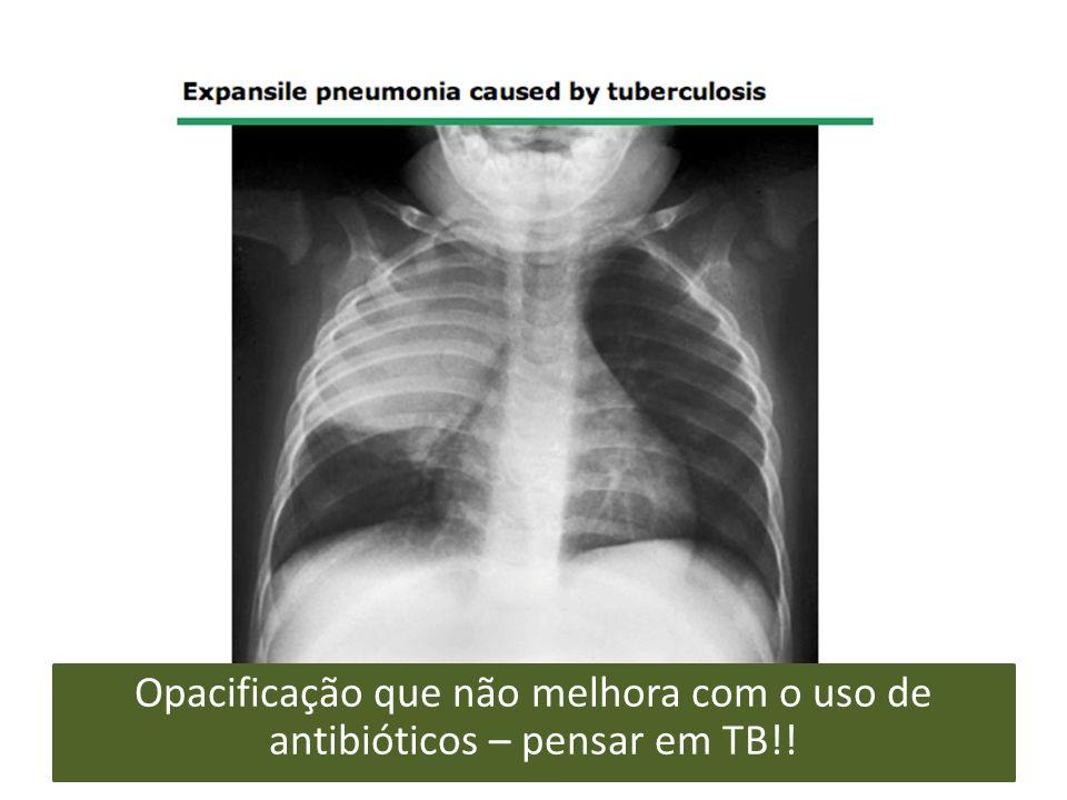 Opacificação que não melhora com o uso de antibióticos – pensar em TB!!