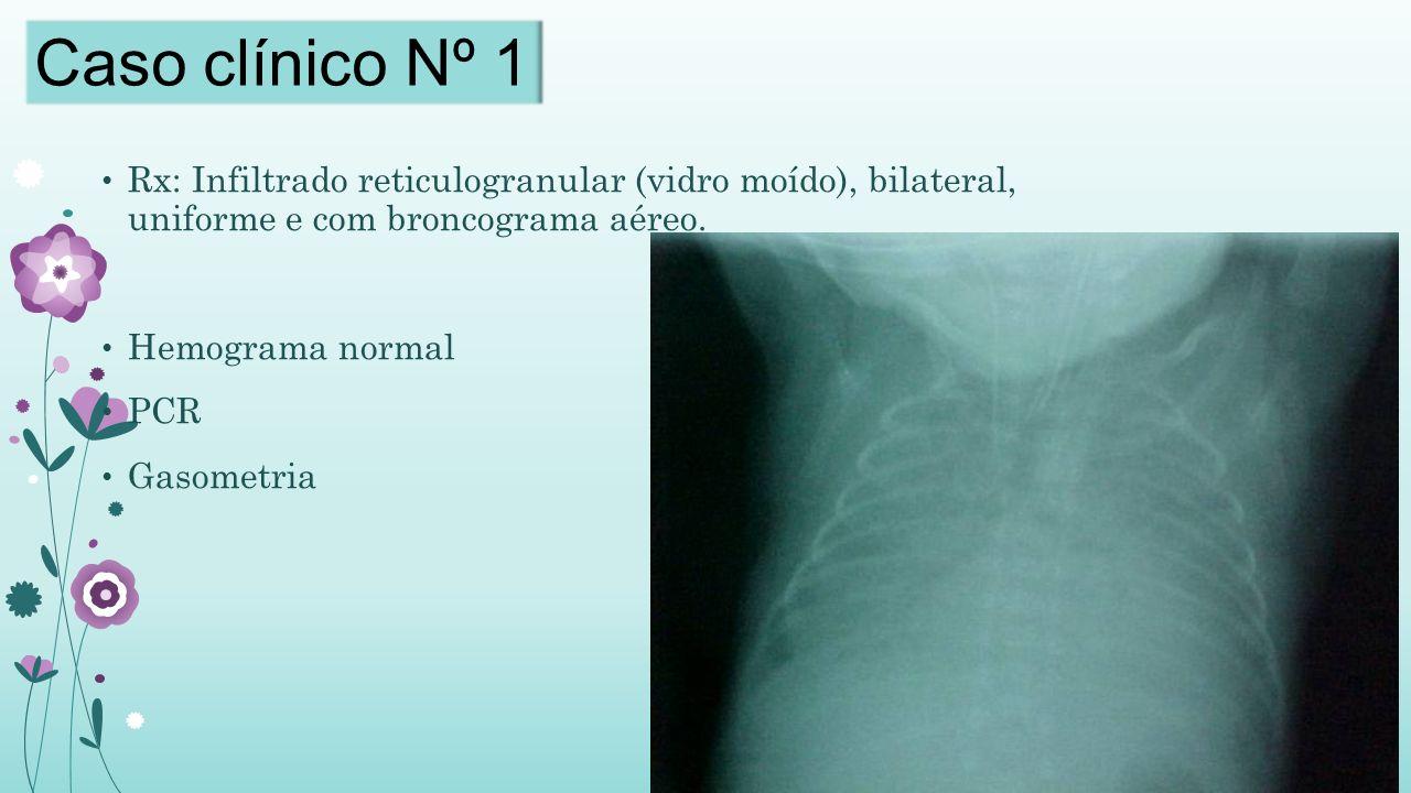Caso clínico Nº 1 Rx: Infiltrado reticulogranular (vidro moído), bilateral, uniforme e com broncograma aéreo.