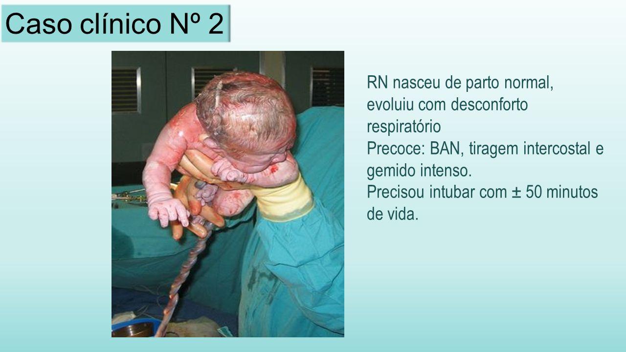 Caso clínico Nº 2 RN nasceu de parto normal, evoluiu com desconforto respiratório. Precoce: BAN, tiragem intercostal e gemido intenso.