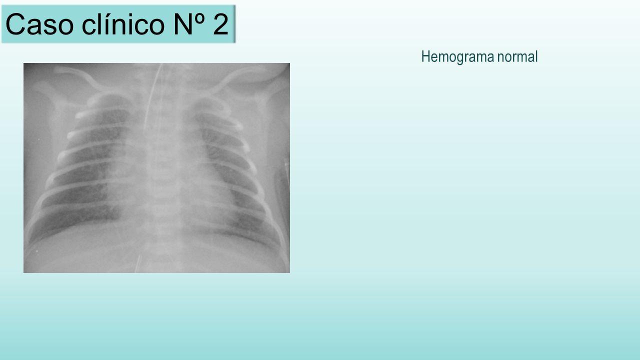 Caso clínico Nº 2 Hemograma normal