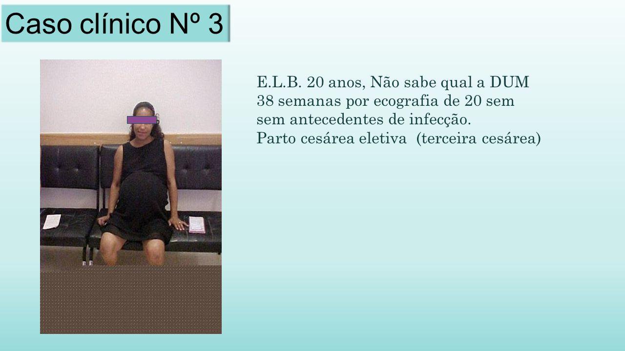 Caso clínico Nº 3 E.L.B. 20 anos, Não sabe qual a DUM