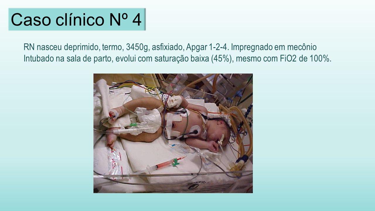 Caso clínico Nº 4 RN nasceu deprimido, termo, 3450g, asfixiado, Apgar 1-2-4. Impregnado em mecônio.