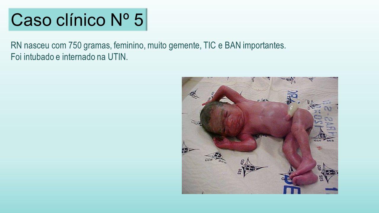 Caso clínico Nº 5 RN nasceu com 750 gramas, feminino, muito gemente, TIC e BAN importantes.