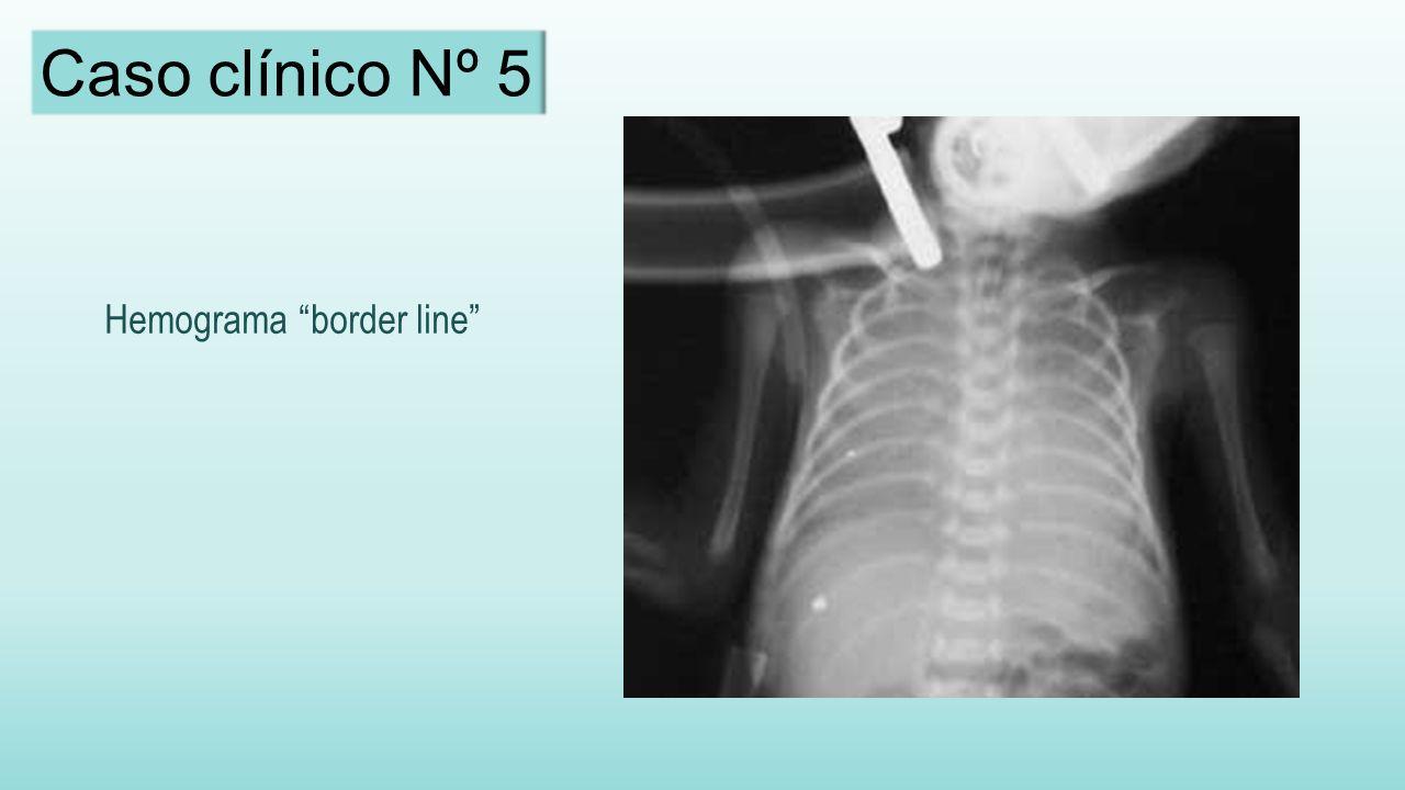 Caso clínico Nº 5 Hemograma border line