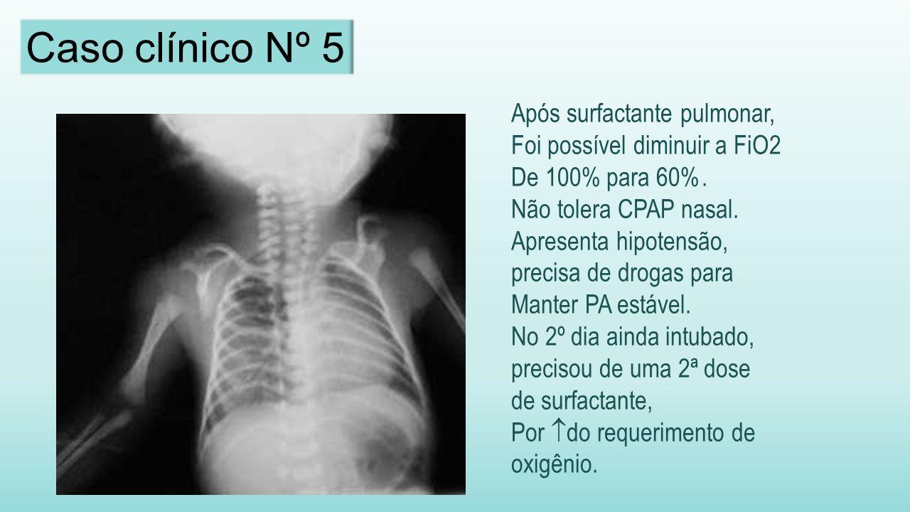 Caso clínico Nº 5 Após surfactante pulmonar,