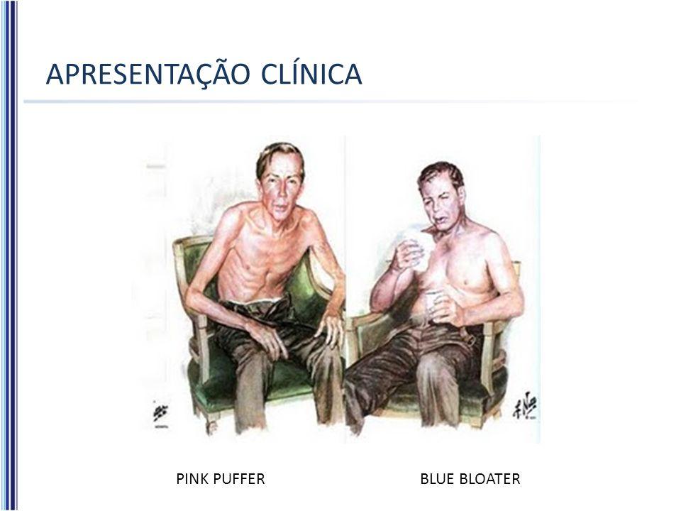 APRESENTAÇÃO CLÍNICA PINK PUFFER BLUE BLOATER