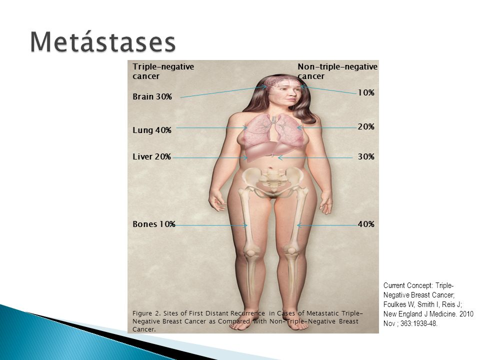 Metástases Triple-negative cancer Non-triple-negative cancer 10%