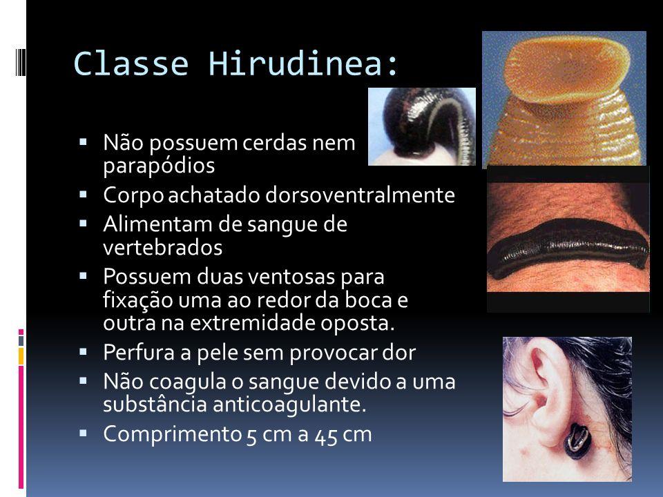 Classe Hirudinea: Não possuem cerdas nem parapódios