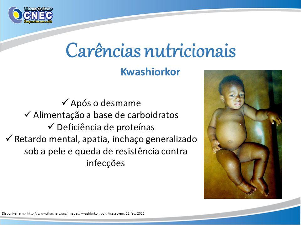 Carências nutricionais