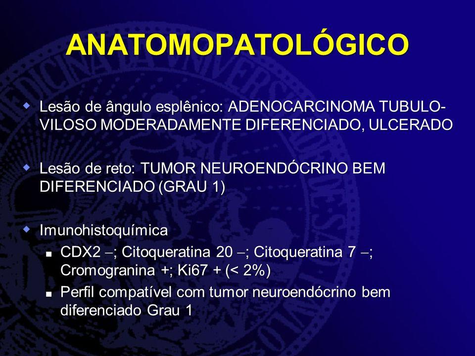 ANATOMOPATOLÓGICO Lesão de ângulo esplênico: ADENOCARCINOMA TUBULO-VILOSO MODERADAMENTE DIFERENCIADO, ULCERADO.