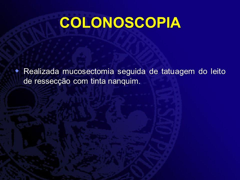 COLONOSCOPIA Realizada mucosectomia seguida de tatuagem do leito de ressecção com tinta nanquim.