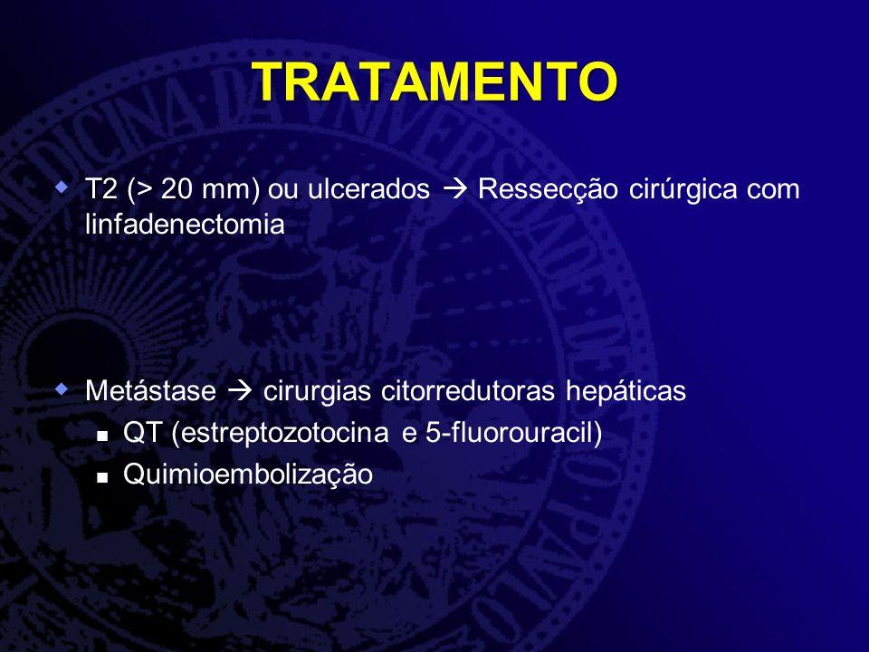 TRATAMENTO T2 (> 20 mm) ou ulcerados  Ressecção cirúrgica com linfadenectomia. Metástase  cirurgias citorredutoras hepáticas.