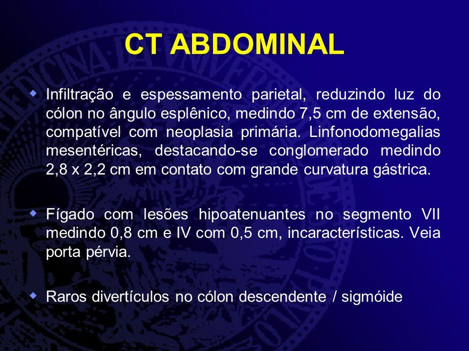 CT ABDOMINAL