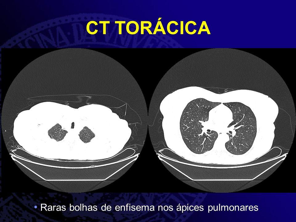 CT TORÁCICA Raras bolhas de enfisema nos ápices pulmonares