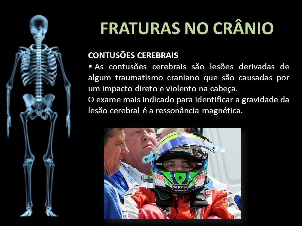 FRATURAS NO CRÂNIO CONTUSÕES CEREBRAIS