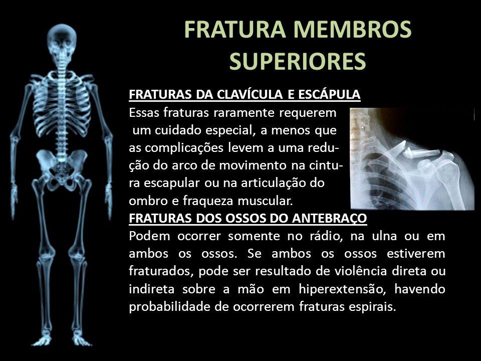 FRATURA MEMBROS SUPERIORES