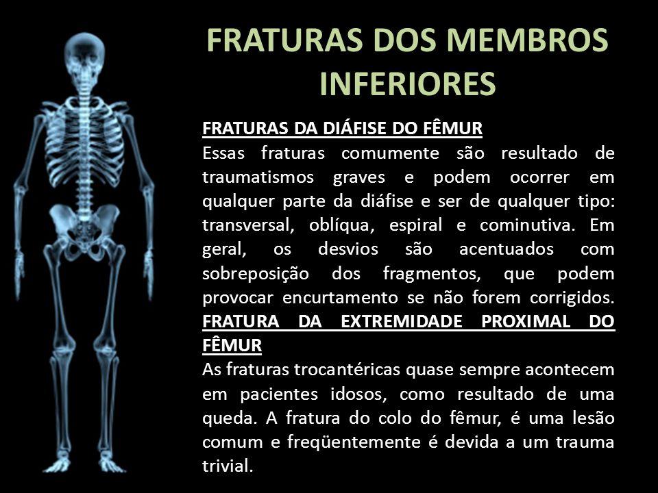 FRATURAS DOS MEMBROS INFERIORES