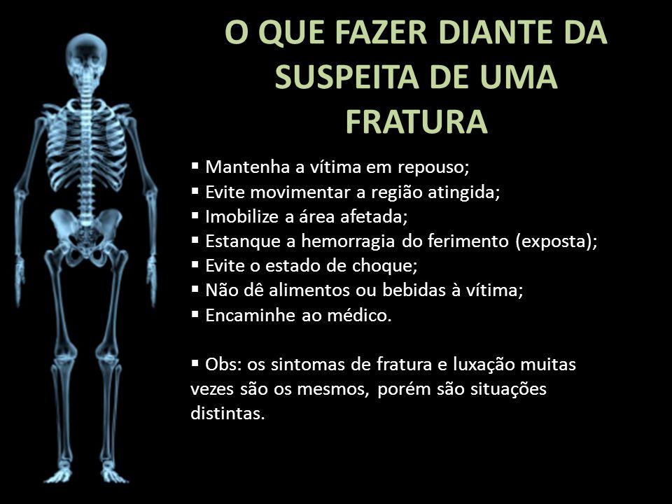 O QUE FAZER DIANTE DA SUSPEITA DE UMA FRATURA