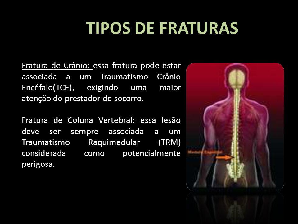 TIPOS DE FRATURAS