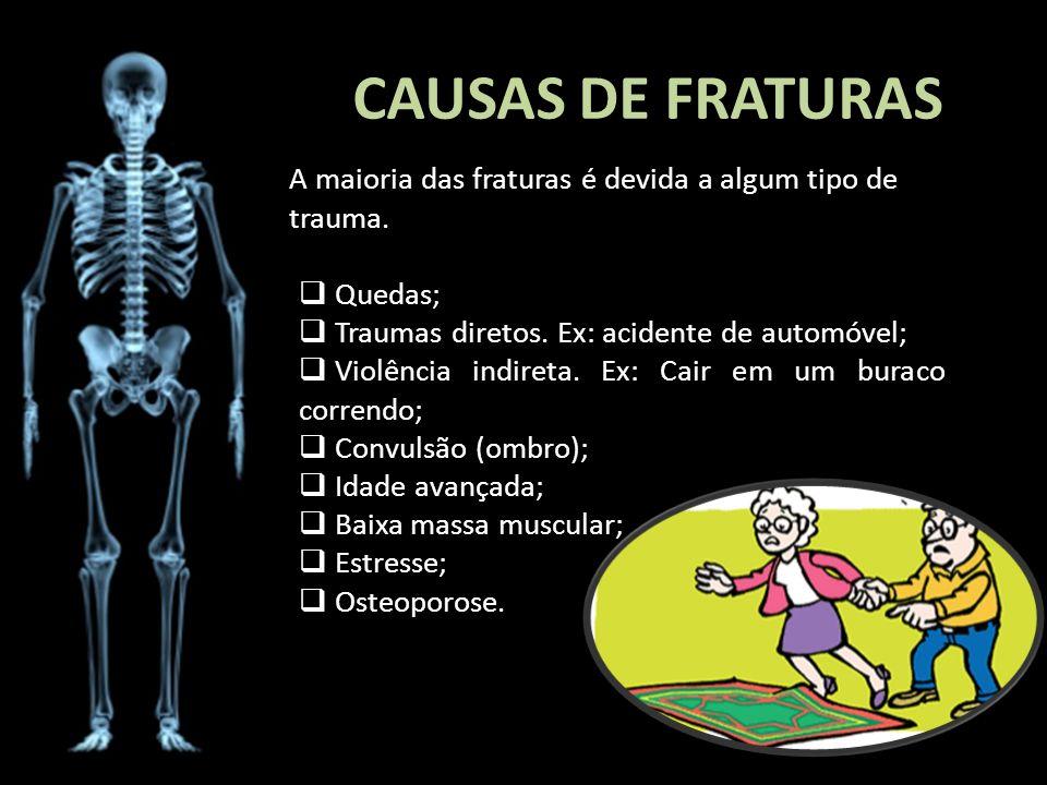 CAUSAS DE FRATURAS A maioria das fraturas é devida a algum tipo de trauma. Quedas; Traumas diretos. Ex: acidente de automóvel;