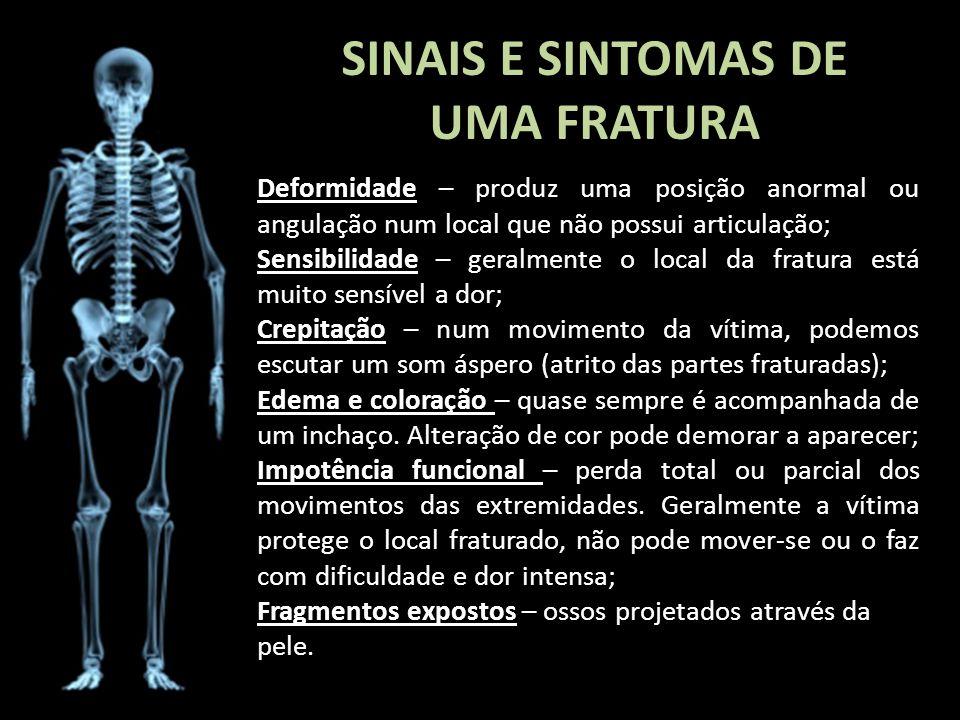 SINAIS E SINTOMAS DE UMA FRATURA