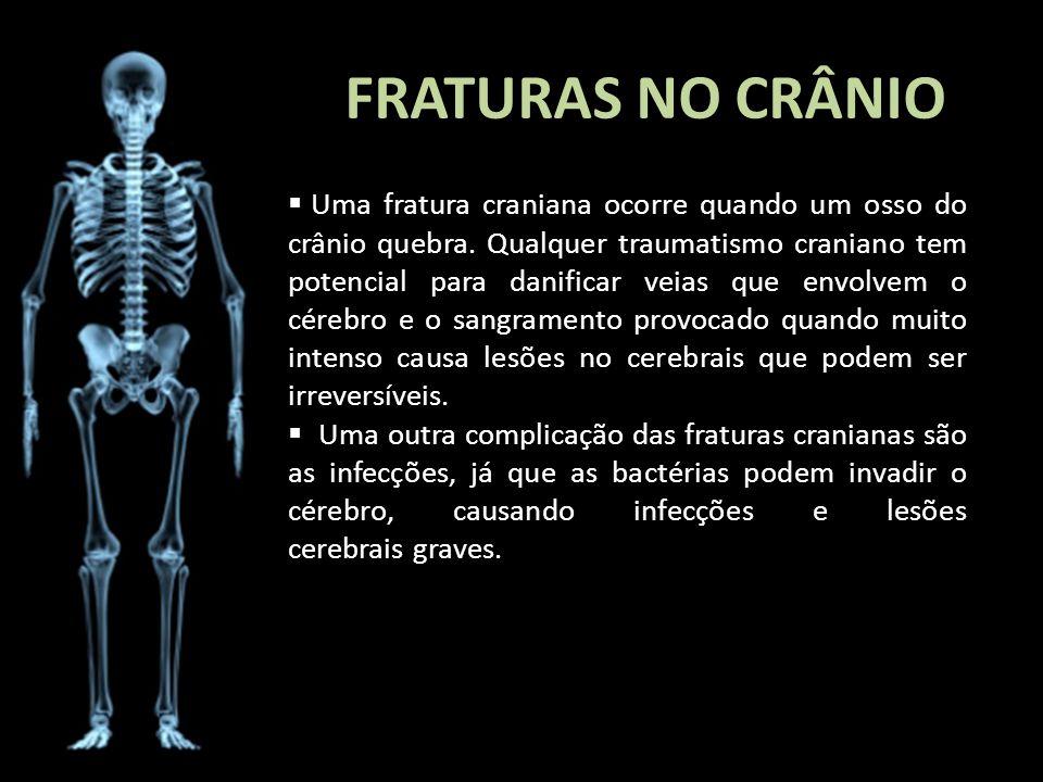 FRATURAS NO CRÂNIO