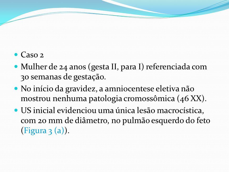 Caso 2 Mulher de 24 anos (gesta II, para I) referenciada com 30 semanas de gestação.