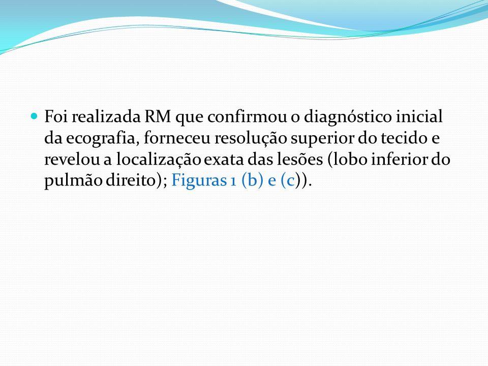 Foi realizada RM que confirmou o diagnóstico inicial da ecografia, forneceu resolução superior do tecido e revelou a localização exata das lesões (lobo inferior do pulmão direito); Figuras 1 (b) e (c)).