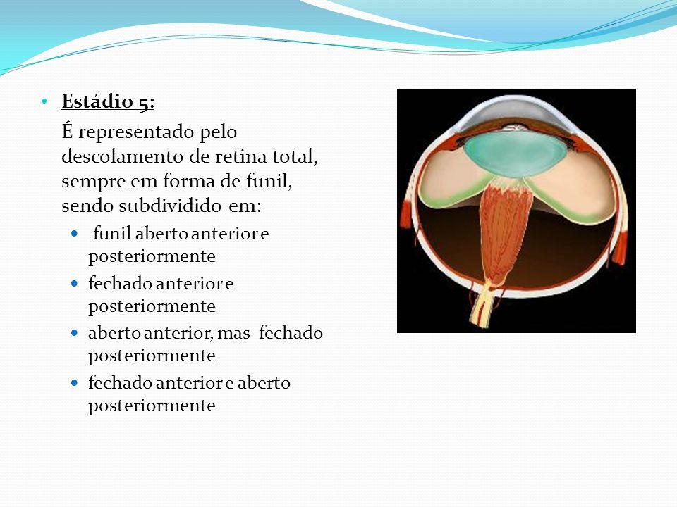 Estádio 5: É representado pelo descolamento de retina total, sempre em forma de funil, sendo subdividido em: