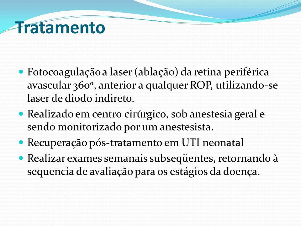 Tratamento Fotocoagulação a laser (ablação) da retina periférica avascular 360º, anterior a qualquer ROP, utilizando-se laser de diodo indireto.
