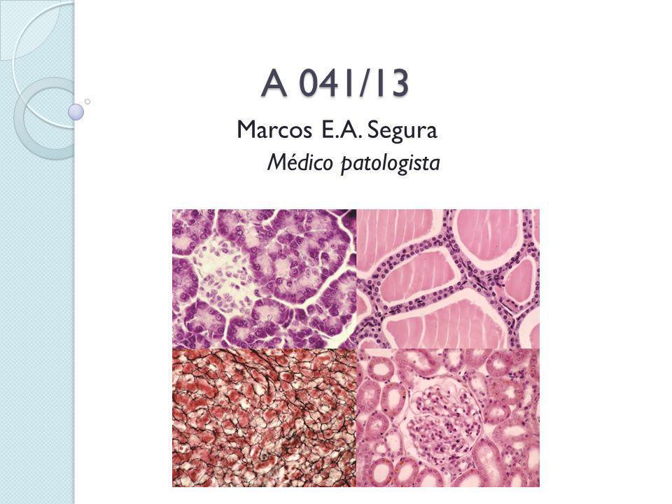 Marcos E.A. Segura Médico patologista